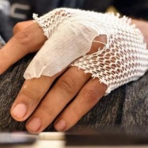 Le doigt de Philippe Gilbert, courageux malgre ce handicap