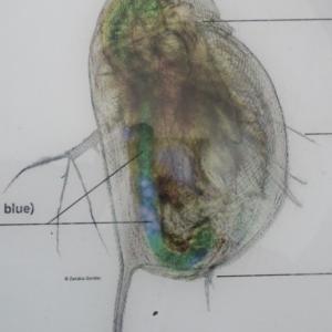 Une amibe victime de la pollution plastique